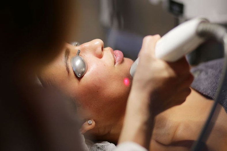 skin rejuvenation laser genesis Skin Rejuvenation Corona aesthetics Corona aesthetician