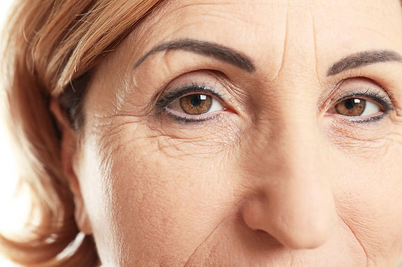 woman with wrinkles, IPL to reduce the signs of aging, stop aging, effects of intense pulsed light, wrinkle treatment, intense pulsed light treatment