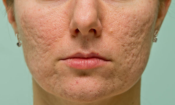 severe acne scarring ONLINE ACNE TREATMENT CONSULT corona aesthetician