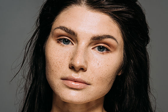 woman with freckles, get rid of freckles and brown spots, remove freckles, remove age spots, remove liver spots, reduce melasma, reduce hyperpigmentation