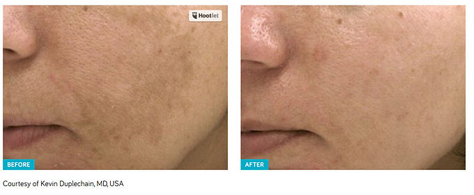 Get rid of pigmented lesions, Spectra Laser Peel, fix pigmented lesions, get rid of fine lines, get rid of acne, get rid of acne scars