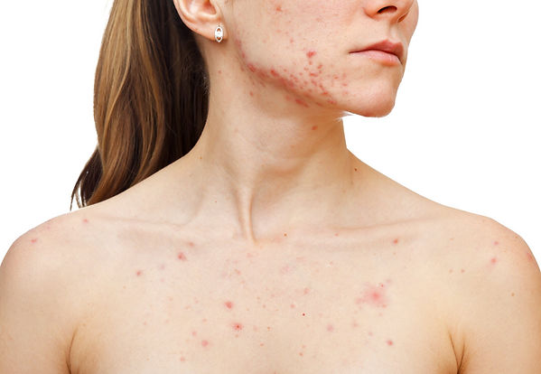 about acne what is acne About Acne Corona aesthetics Corona aesthetician Skin rejuvenation