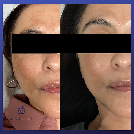 chemical peel before and after images