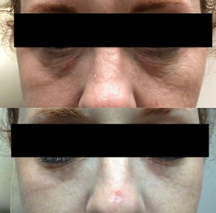 dermapen for under eye bags before and after treatment