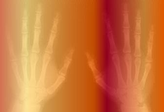 Radiografía.png