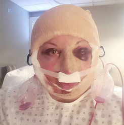 After waking up from my facial feminization surgery with Dr. Harrison Lee in Beverly Hills, California.
