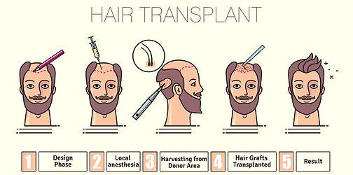 hair_transplant.jpg