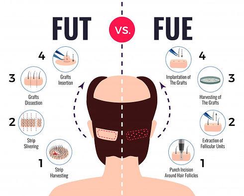fut-vs-fue.jpg