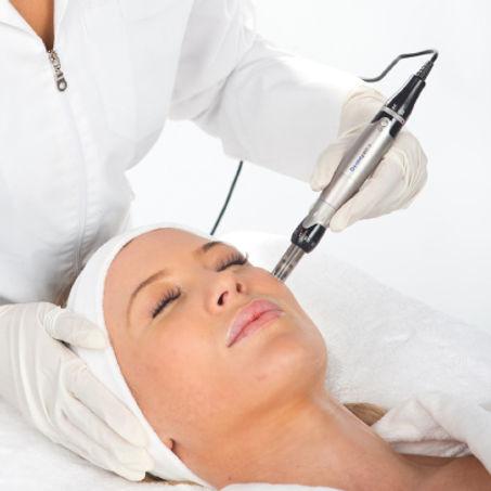 Dermapen-Skin-Needling.jpg