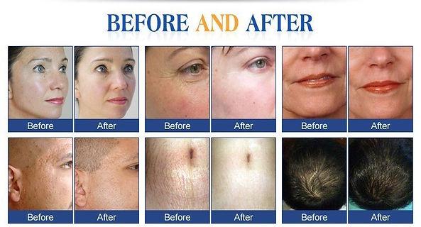 before after skin pen.jpg