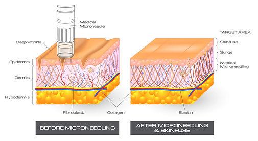 microneedling-img5.jpg