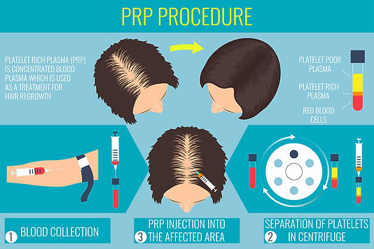 PRP-for-hair-loss.jpg