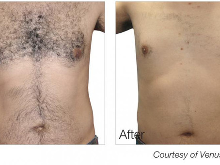 Is Venus IPL Permanent Hair Removal Treatment for me?