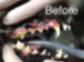 dentalb4.JPG