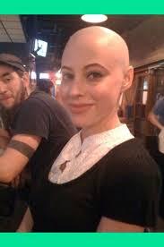 bald5