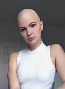 bald3