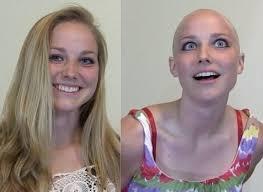 bald13