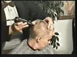 bald33p2