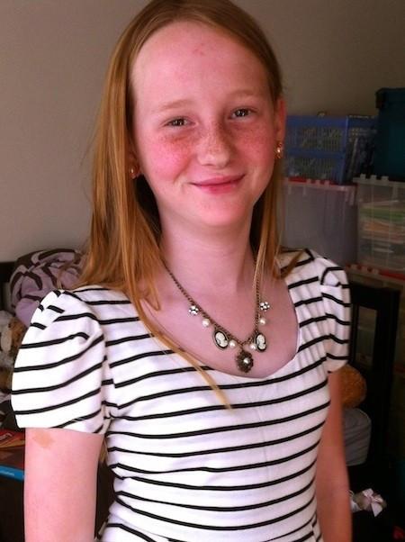 Micaleh controlling her type 1 juvenile diabetes