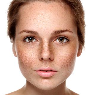 Photofacial - Correction of pigmentation
