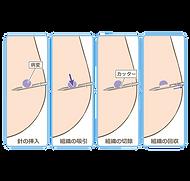 mammotome-biopsy-method-insert-needle-ti