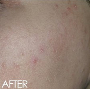 Skin improvement after intolerace testing and diet assesset