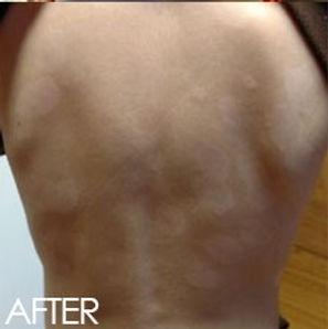 After Skin