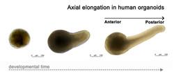 Axial Elongation of Human Organoids