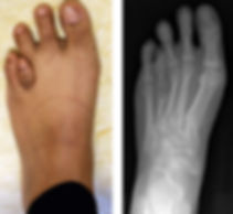toe-lengthing.jpg