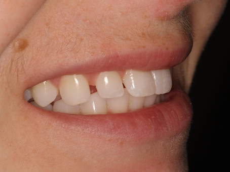 Pear Tree Dentistry: Beautiful Smile Makeover