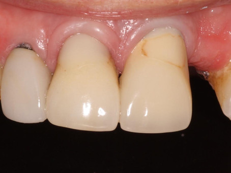 Pear Tree Dentistry: A beautiful smile transformation