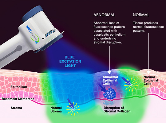Figure 1: diagram of VELscope with blue light causing tissue fluorescence