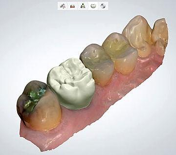 CAD CAM Dental Crown Zirconia