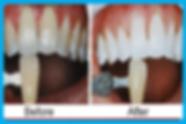 Teeth Whitening Bleaching Ranchi Smiles Central