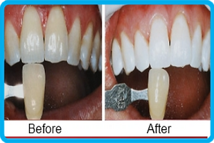 Teeth Whitening Bleaching Ranchi Smiles Central
