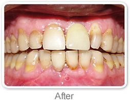 Fixed Teeth Ranchi