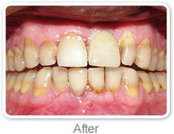 Fixed Teeth Ranchi