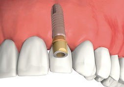 Cheap Dental Implant Ranchi