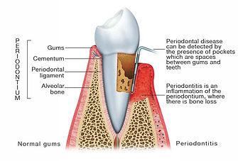 Gum Disease Ranchi