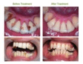 Ultrasonic Teeth Cleaning Scaling Ranchi