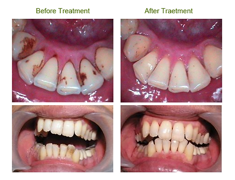 Ultrasonic Teeth Cleaning Scaling Ranchi