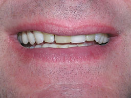 A picture of teeth that are stained and discolored.
