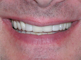 A picture of the same teeth after the y have been fixed using a combination of veneers and composite
