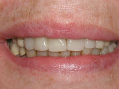 A picture of the same teeth after veneers have been replaced.
