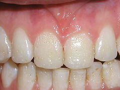A picture of teeth with a congenital problem effecting appearance