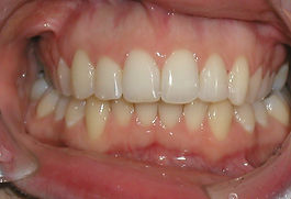 A picture of the same teeth after wearing braces