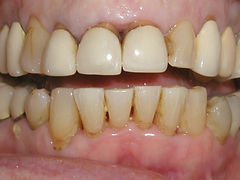 A picture of teeth that are stained, and have old porcelain veneers