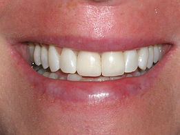 A picture of the same teeth after placing porcelain crown and veneers making them uniform .