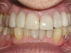 A picture of the same teeth after placing porcelain veneers correcting all of the problems.