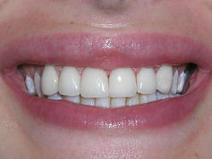 A picture of the same teeth after placing porcelain veneers.